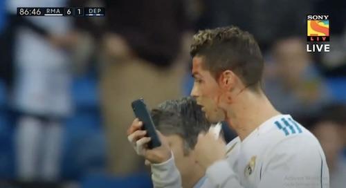 Bleeding Cristiano Ronaldo